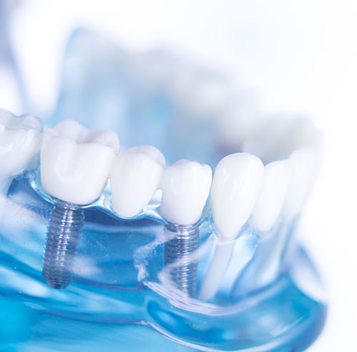 Dental Implants in Folsom, CA - Henna Sandhu DDS